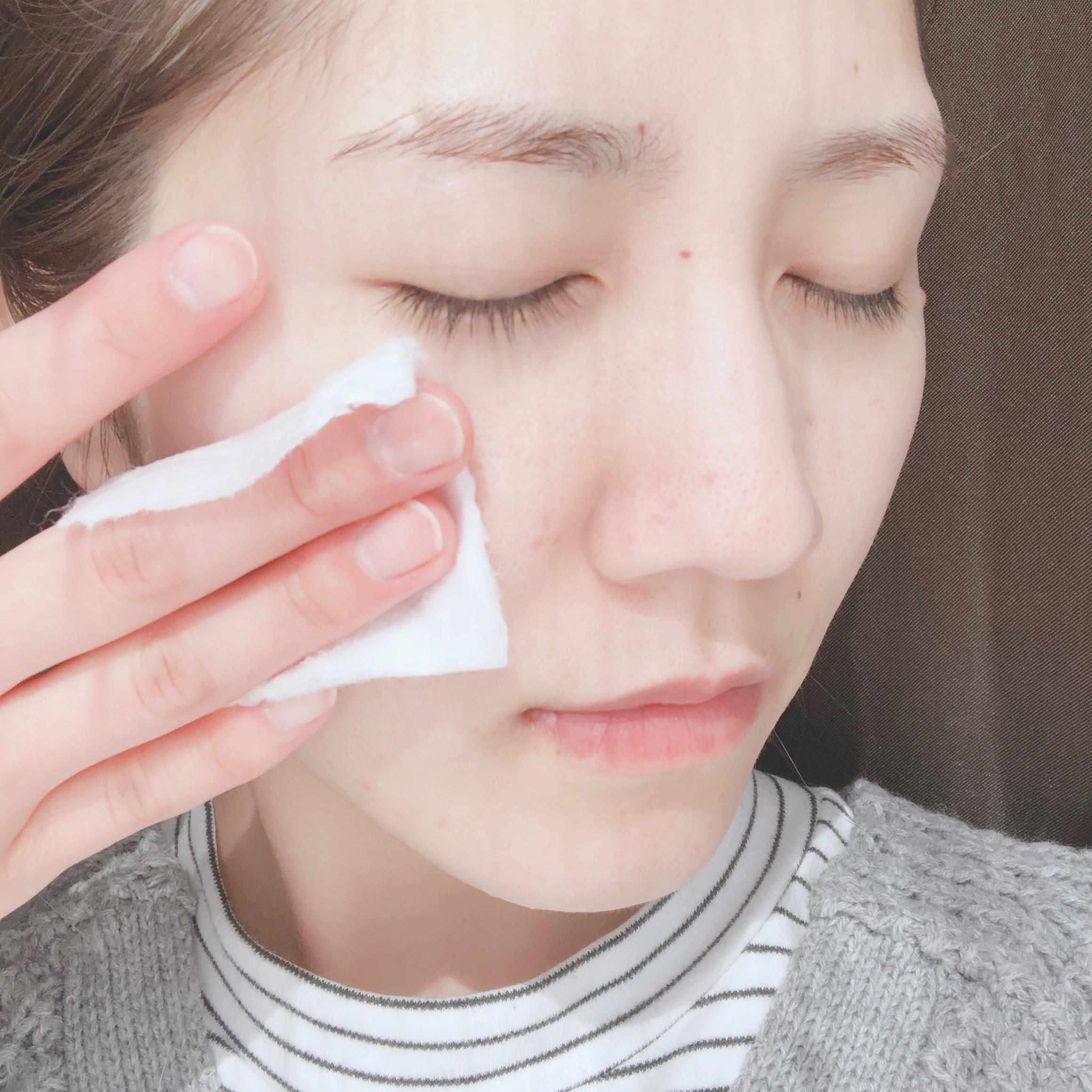 プチプラ化粧水特集 - 乾燥、ニキビ、美白などにおすすめの高コスパな化粧水まとめ_20