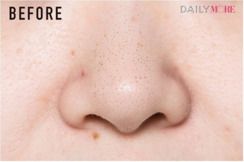 毛穴特集 | つまり・黒ずみ・ひらき・角栓・ケア方法・おすすめの化粧水・美容液・洗顔料・クレンジング_36