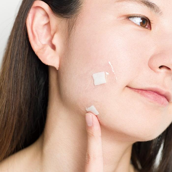 ニキビケア特集 - ニキビの原因は? 洗顔などおすすめのケア方法は?_20