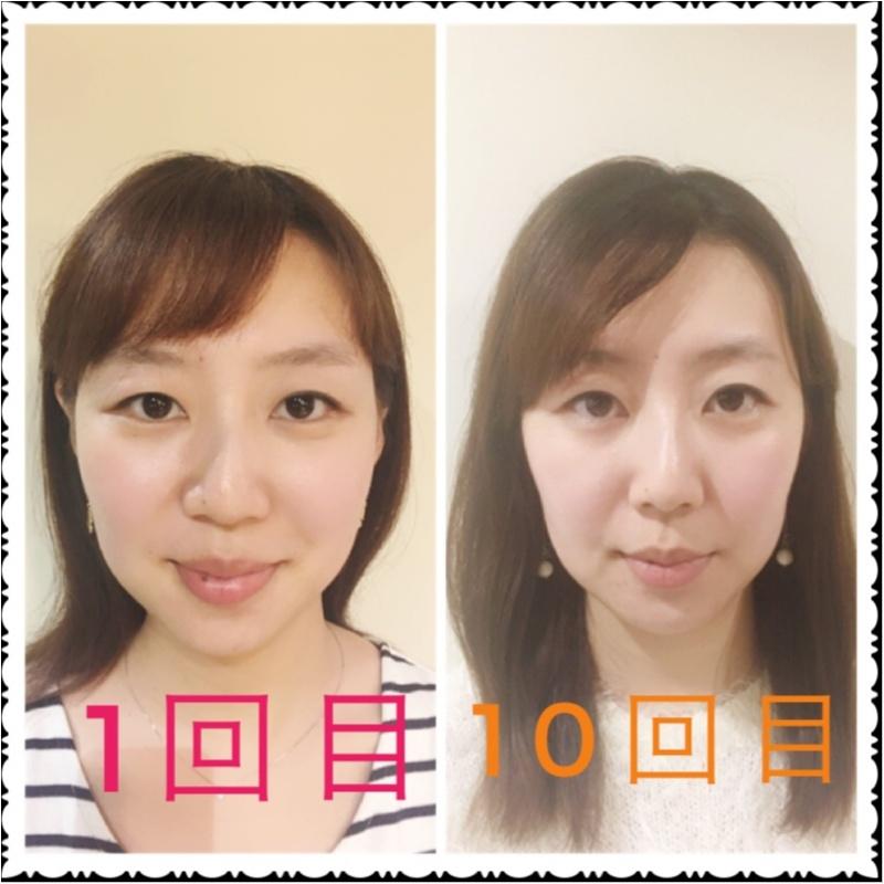 【小顔矯正】10回目を終えて見た目の変化にぎょぎょっ!!_5