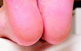 【いってみよう!やってみよう!】おブス足から脱却できるフットケアサロン『サロン ド ピュア ボディ』_11