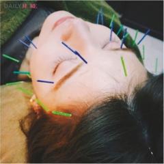 村田倫子ちゃんは『HIMEBARI』の美容鍼でリフレッシュ♡ 【教えて! モアビューティズの1UP美容♡】