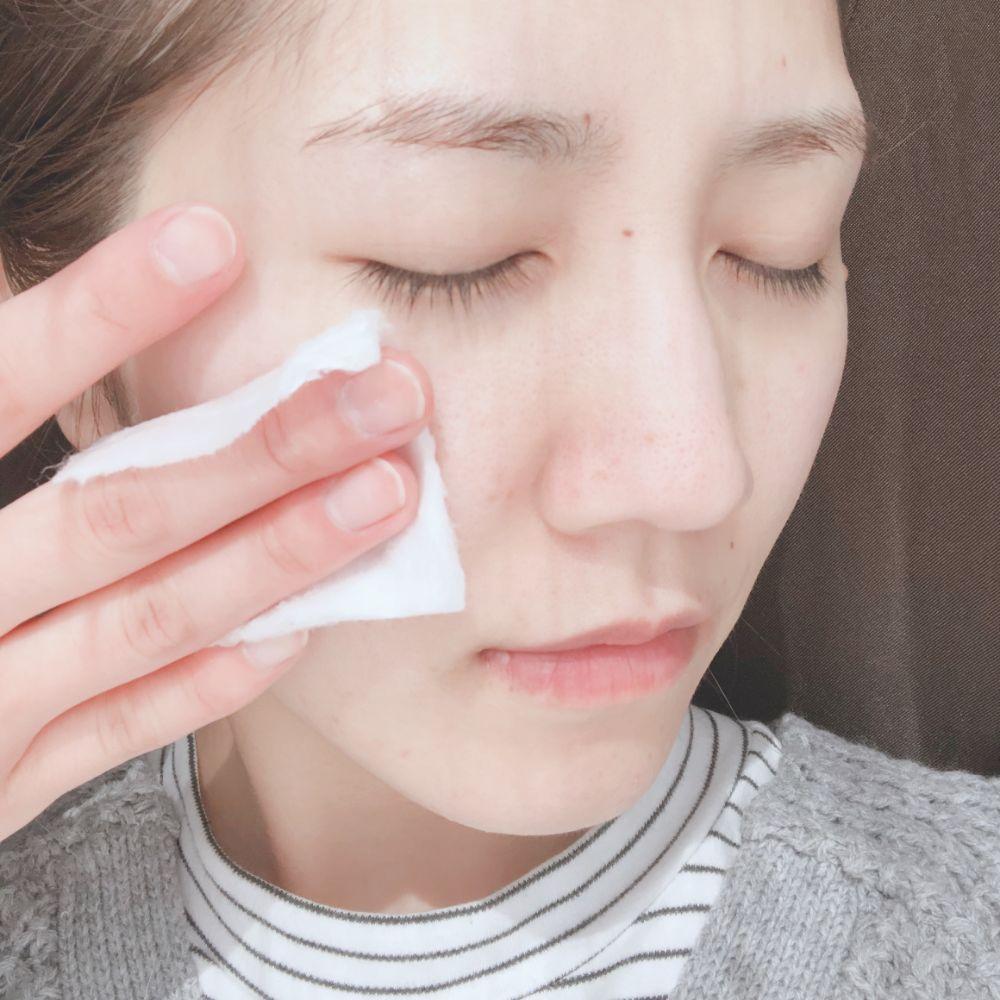 20代女子におすすめのニキビケア特集 - 化粧水や洗顔、ニキビパッチなどニキビケアアイテムまとめ_17