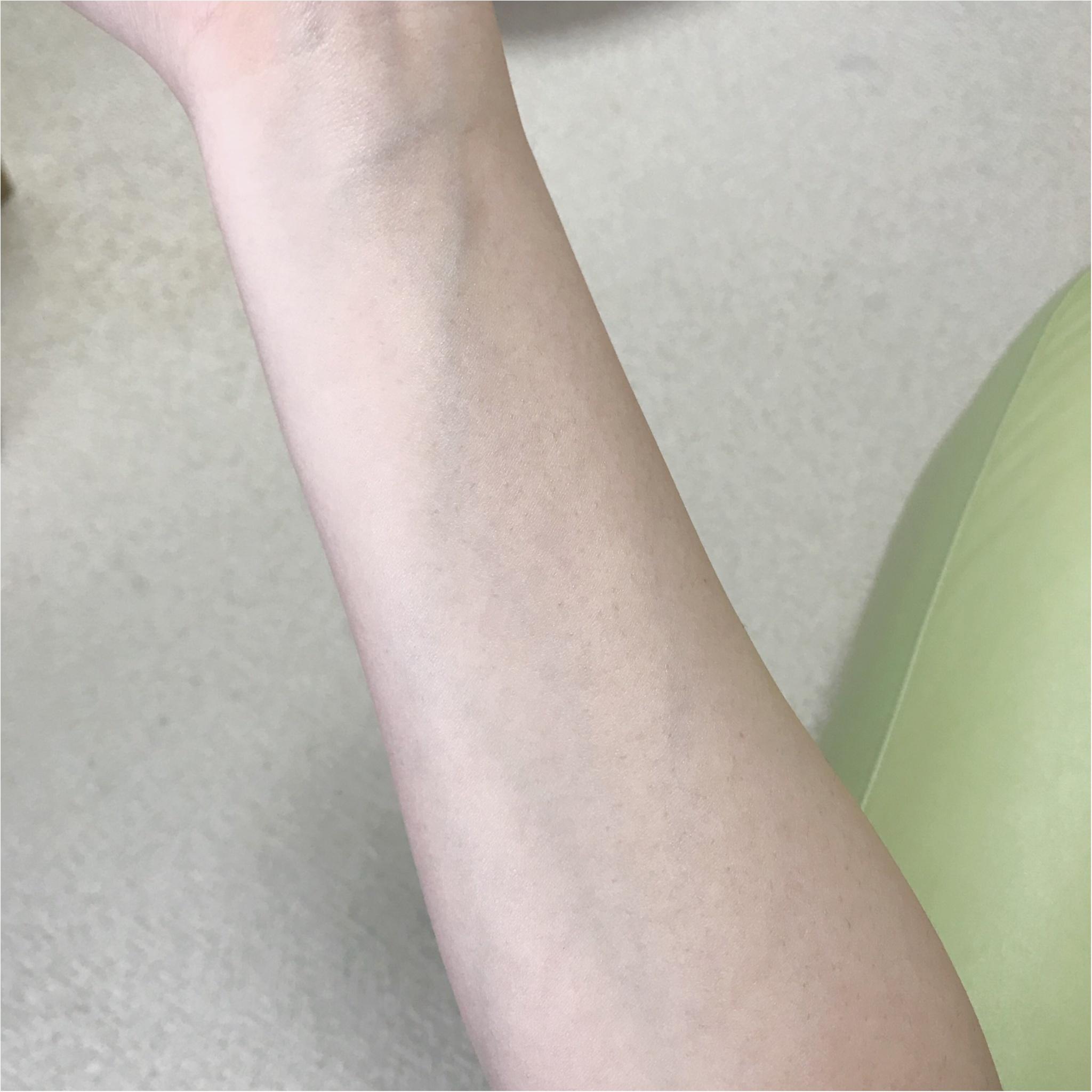 ビタミンC誘導体入りスキンケア特集 - 美白ケアやシミ、毛穴、ニキビなどの肌悩みへのおすすめは?_14
