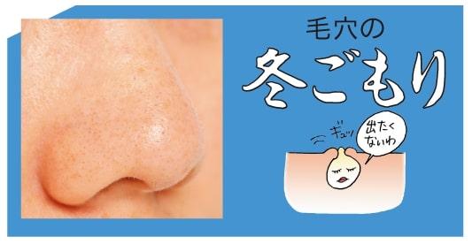 ニキビケア特集 - ニキビの原因は? 洗顔などおすすめのケア方法は?_28