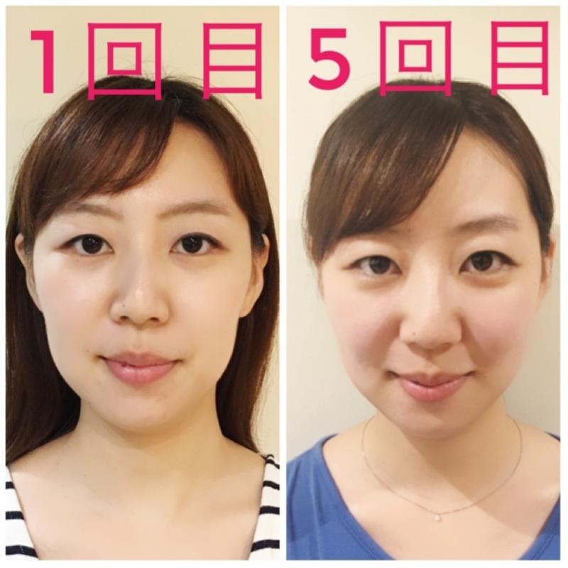 【小顔矯正】1回目と5回目を比較してみた。さぁ施術の効果はいかに!?_4