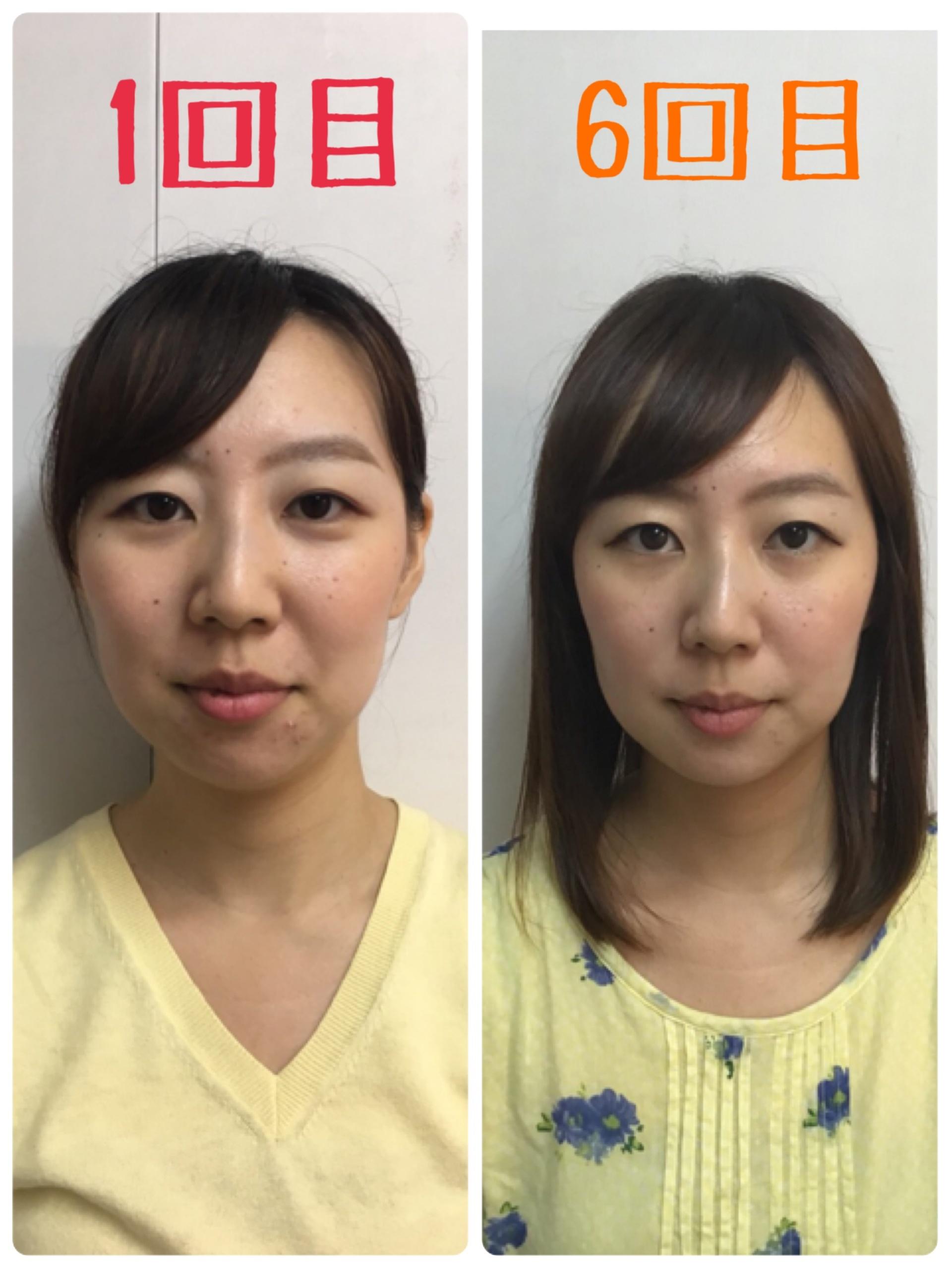【小顔矯正】1ヶ月間通ってみた変化はいかに!?_2