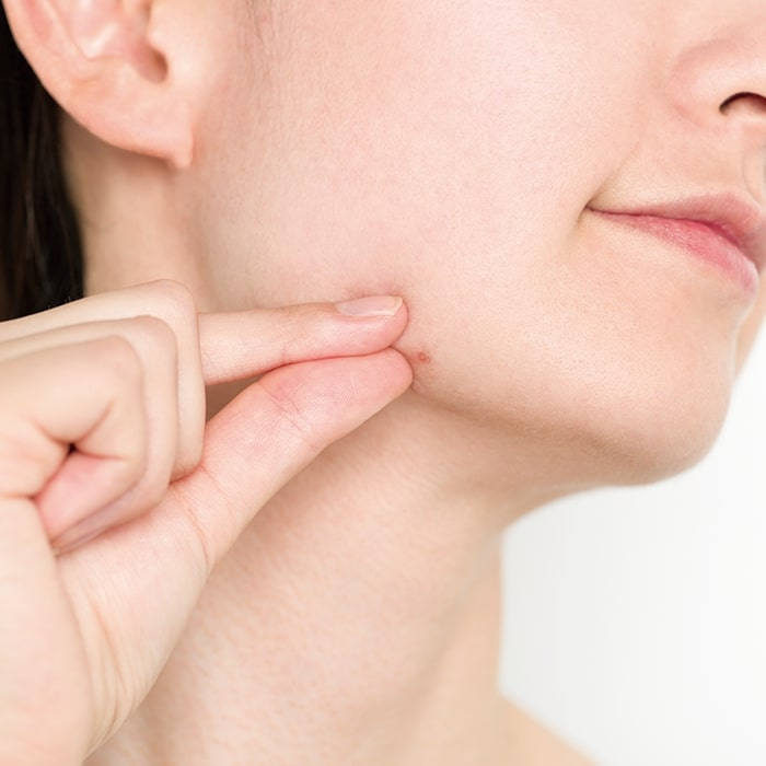 ニキビケア特集 - ニキビの原因は? 洗顔などおすすめのケア方法は?_16
